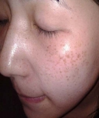Prevention of Pigmentation on the Face